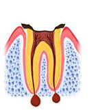 歯の根しか残っていない状態