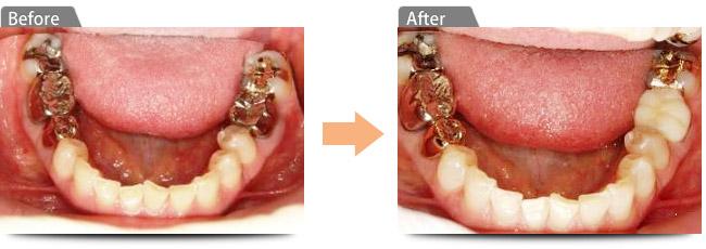 「大きな」虫歯を綺麗に治療したい・銀色の「かぶせ物」を白くしたい