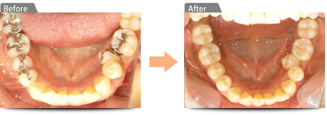 「小さな」虫歯を綺麗に治療したい・銀色の「つめ物」を白くしたい